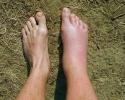 Нога Ети или атака шершня